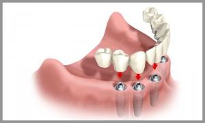 Zahnimplantate Wendelstein